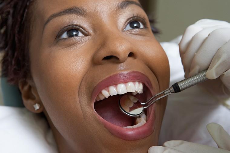 「歯の詰め物」という意味になる英語について